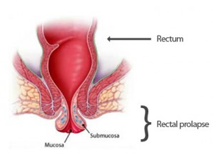 rectal prolapsus